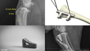 Picture of Practical Tibial Tuberosity Advancement (TTA): Safety-focused Techniques, Training, Instrumentation and Support